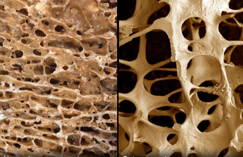 Osteoporosi: fenomeno in aumento tra gli ultraottantenni